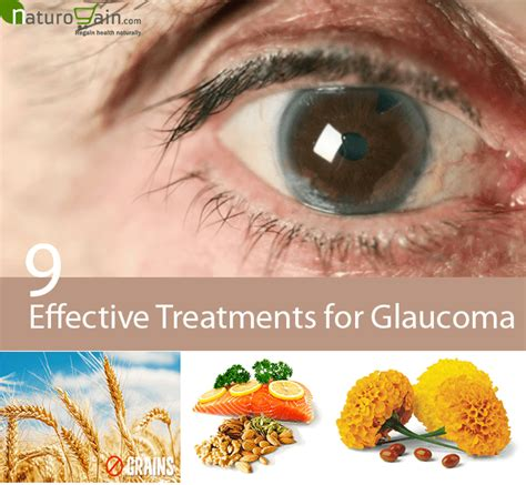 glaucoma treatment remedies to live a healthier