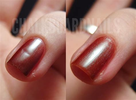 dent in nail bed orly nail rescue to the rescue chalkboard nails nail