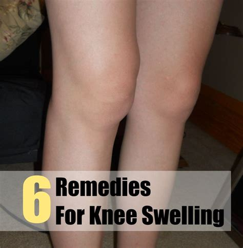 25 best ideas about knee swelling on knee