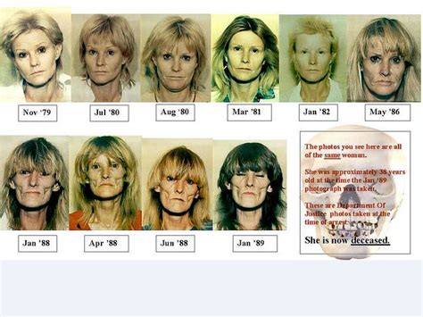 Detox From Meth Use by 39 Best Images About Faces Of Abuse On