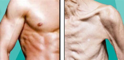 sarcopenia 的圖片結果