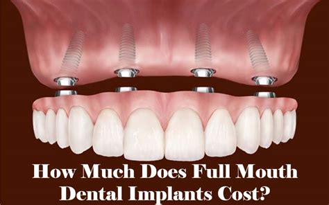 how much does a full dental implants dental implantation teeth tooth implants