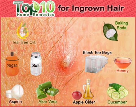 how to remove engrown hair onunderwear line home remedies for ingrown hair top 10 home remedies