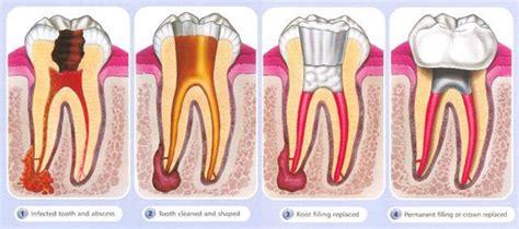 comfort dental root canal cost creve coeur endodontics faqs