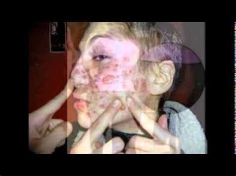 imagenes asquerosas de enfermedades 10 imagenes mas asquerosas del mundo videos videos