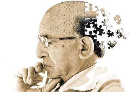 alzheimer s what you should know about alzheimer s disease and
