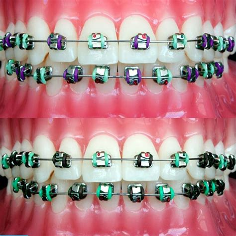 color for braces 20 best braces colors images on braces colors