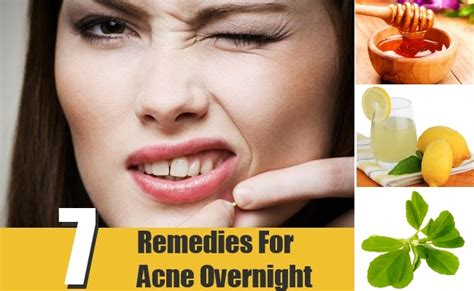 7 remedies for acne overnight treatments cure