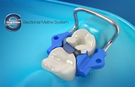 sectional matrix dentismart smartview sectional matrix system dental