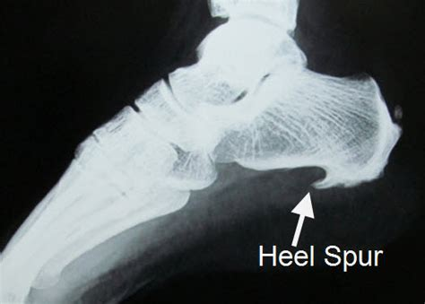 Planters Spur by Heel Spur Is Not Cause Of Your Heel Plantar