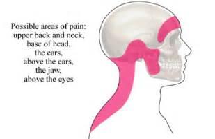 The 5 types of headache identify your headache now healthlob
