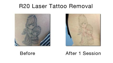 r20 laser tattoo removal reviews laser removal new york painless removal nyc