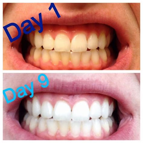 oil pulling  coconut oil stops cavities   mouth