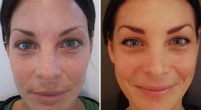 light chemical peel before and after before after photos york m klausner md