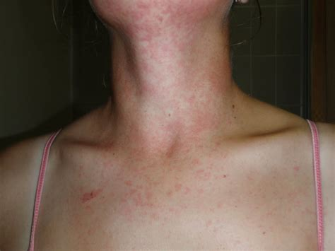 rash on neck sweat rash on the chest pictures