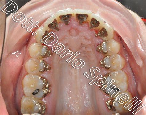 apparecchio interno ortodonzia invisibile apparecchio linguale incognito