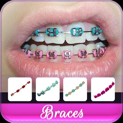braces colors braces colors apk free photography app