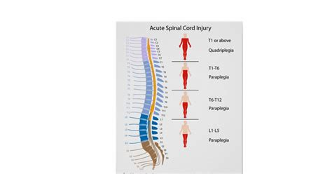 spinal cord injury diagram spinal cord injury levels labelled diagram zazzle