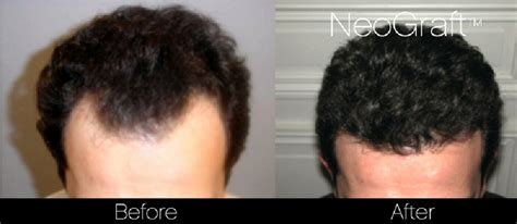 neograft hair transplant results bhrc neograft video review