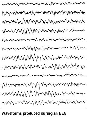 eeg pattern recognition quiz electroencephalography eeg