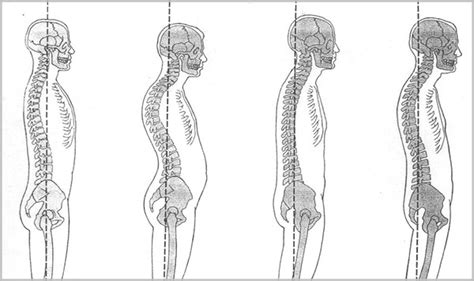 postural assessment paspa physical therapy