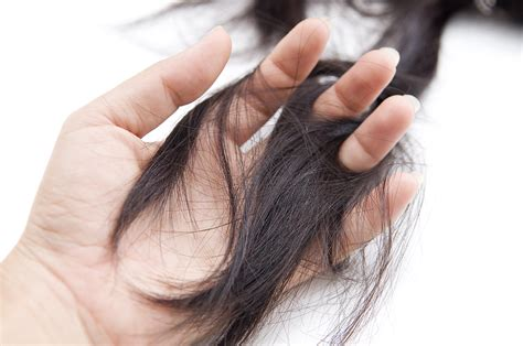 alopecia hair loss in women losing their hair is women s greatest fear sell your