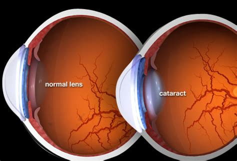 post cataract surgery light pictures what cataracts look like causes surgery and more