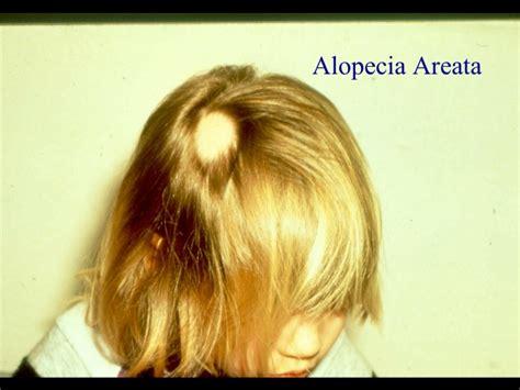 ophiasis pattern hair loss descargar