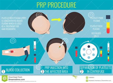 surgery information understanding surgery surgery a to z platelet rich plasma injections for hair growth search