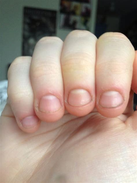 how to fix and grow out bitten nails snapguide