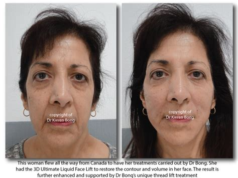 How To Soften Jowls | how to soften jowls puppet facelift lunch time facelift