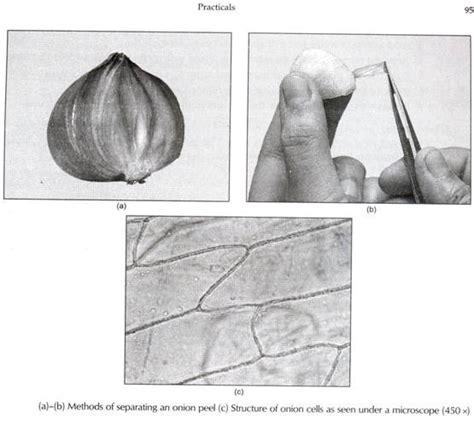 fqniz5flbpwx3qmb onion city onion cell under microscope magnification