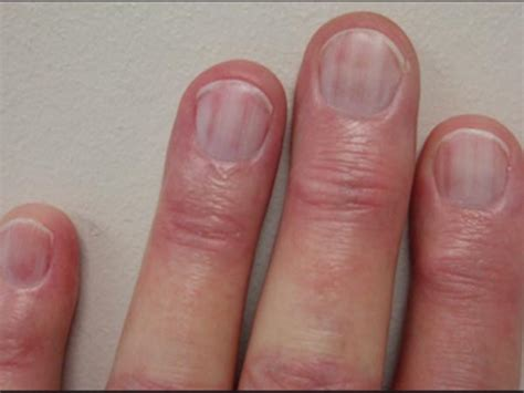 dark nail beds what your nails say about your health health article