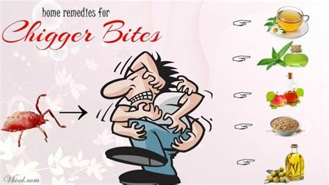 13 home remedies for chigger bites on human