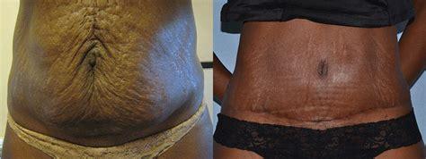 Tummy Tuck To Hit Uk by Abdominoplasty Patient Story Barbara Ambassador