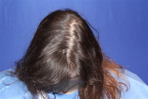 alopecia hair loss in women hair loss in women trichostem hair regeneration centers