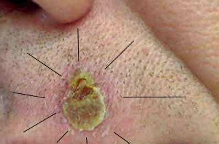 tattoo healing yellow crust skin cancer forum