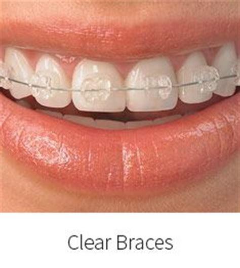 braces color selector quiz best 25 braces color wheel ideas on braces