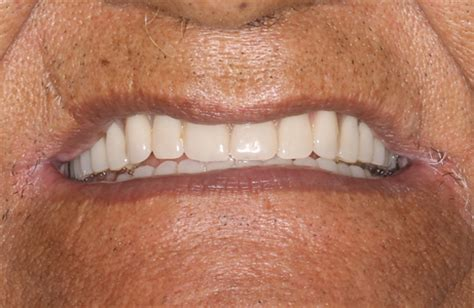 dentures montrose  montrose  cosmetic dentist gallery
