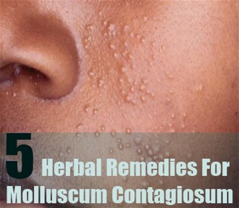 5 best herbal remedies for molluscum contagiosum timeswings