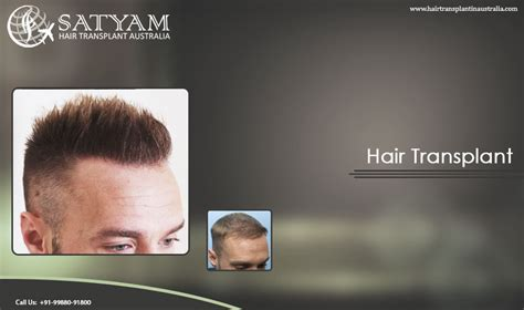 hair transplant in australia what are the factors that the quality in hair transplants number one hair