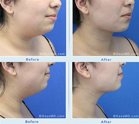 how to soften jowls fix sagging jowls and trim your jawline with face muscle
