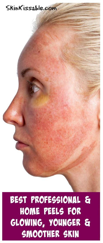 best skin peel best chemical peels for wrinkles 3 home peels for