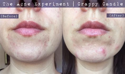 Acne Chin Detox by Paula S Choice Earth Sourced Cleanser Review The Acne