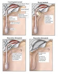 hernie inguinale sympt 244 mes complications et