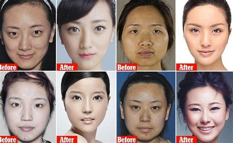 Are Getting Bigger And Its Not Plastic Surgery by Bigger Frastrated News