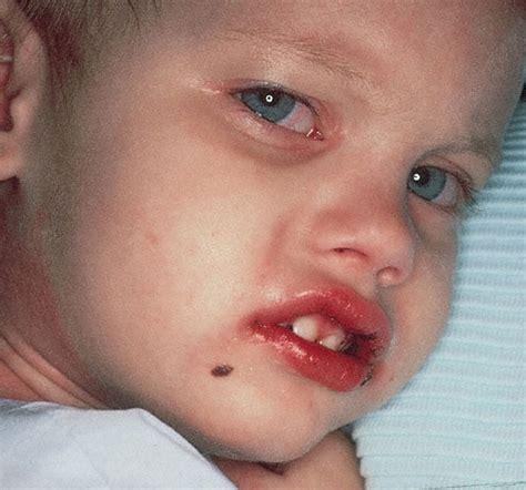 Kawasaki Disease Images by Image Gallery Kawasaki Disease Strawberry Tongue