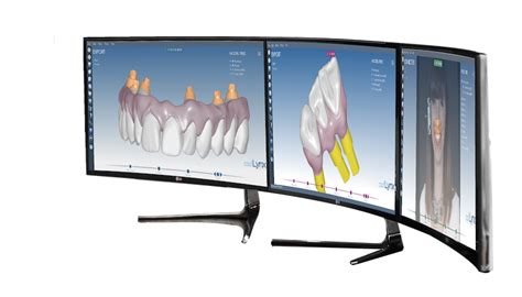 design lab online lynx cad lynx the 3d dental software by 3d lynx