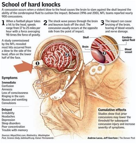 concussion causes symptoms treatment concussion