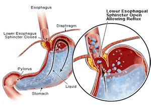 heartburn after c section home remedies for heartburn powerful and effective